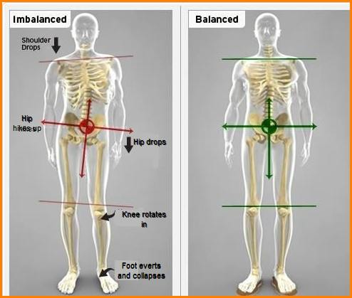 skeletal imbalances image