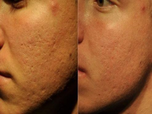 before and after microchanneling to reduce pore size